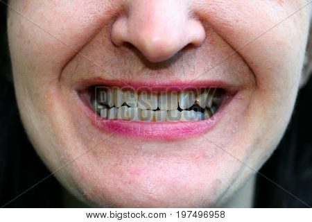 Crooked teeth in the mouth. Orthodontics. Malocclusion