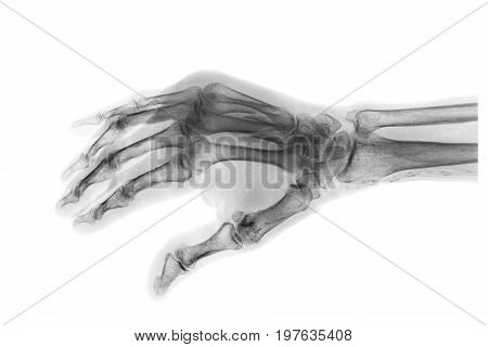 Fracture at 3rd and 4th metacarpal bone . Film x-ray of adult hands . Oblique view .