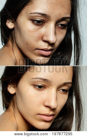 Before And After Cosmetic Operation.