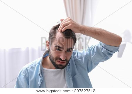 Young Man With Hair Loss Problem Indoors