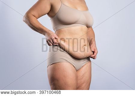 Tummy Tuck, Flabby Skin On A Fat Belly, Plastic Surgery Concept