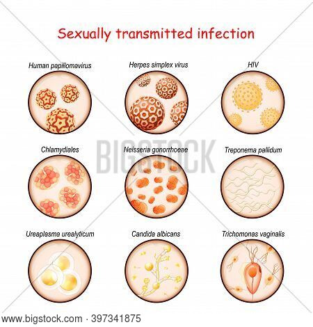 Sexually Transmitted Infection. Close-up Of Causative Agents Of Venereal Disease: Ureaplasma, Tricho