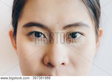 Close Up Shot Of Asian Woman Face Marking And Applying Cream Concealer On Her Under Eyes. Concealer