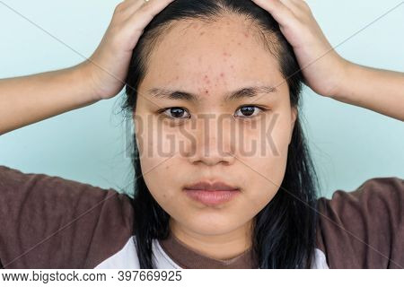 Close Up Of Young Asian Woman Worry About Her Face When She Has Problems With Skin On Her Face.  Pro