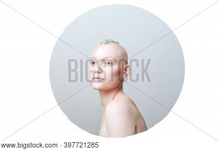 Beautiful Unusual Bald Girl On A White Background In A Gray Circle With Flowers On Her Head, Unusual