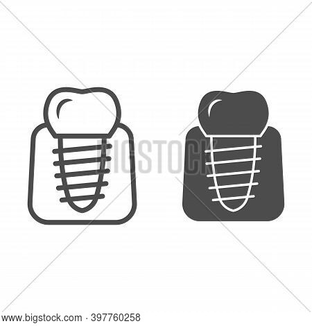 Dental Implant Line And Solid Icon, International Dentist Day Concept, Stomatology Of Implant Sign O