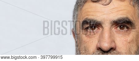 A Man With Cataracts Is A Disease Of The Lens Of The Human Eye, Clouding. Comparison Of Healthy And