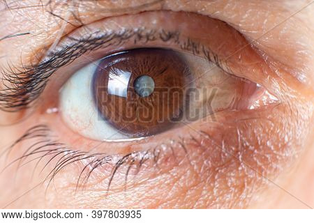 Macro Photos Of The Human Eye - Cataract Clouding Of The Lens, Deterioration Of Vision. Treatment, S