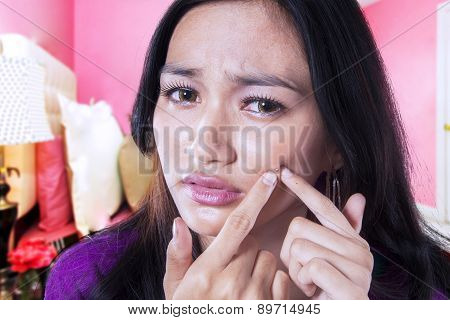 Young Girl Squeeze Her Acne