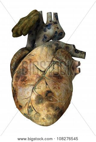 Sick Human Heart