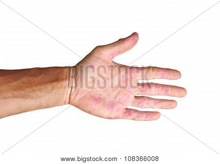 Palm patient erythema in red in ulcers from inflammation isolated on white background poster