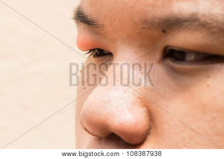 Swollen Red Upper Eye Lid With Onset Of Stye Infection