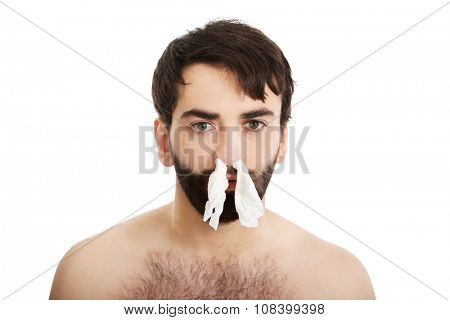 Poor sick man with tissues in nose.