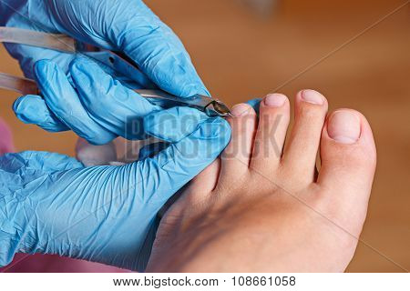 Chiropody Spa Salon. Removing Cuticle.