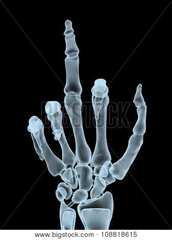 X-ray Hand Making Offensive Gesture