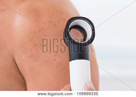 Doctor Checking Acne Skin Of A Man