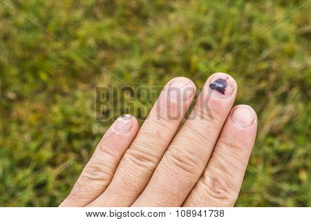 Subungual Hematoma On The Middle Finger