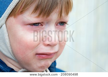 little boy was crying from hurt tears stream down cheeks. emotion child sadness. kid cry
