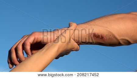 Two arms on blue sky. Hand female holding male wrist with bloody wounds and veins on skin. Support rescue and help concept.
