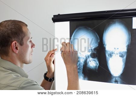 Specialist watching images of skull  at x-ray film viewer,making notes. Diagnosis,treatment planning