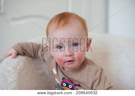 Beautiful redhead baby with allergy - atopic dermatitis