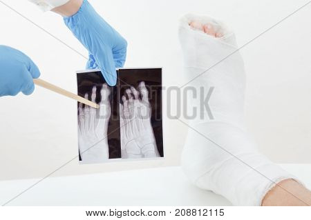 Doctor examines x-ray image broken leg of the patient in plaster lying on the couch on white background