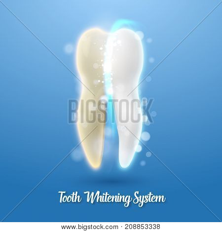 Illustration of Vector Teeth Cleaning Healthcare Stomatology Procedure. Realistic Vector Tooth Cleaning Process