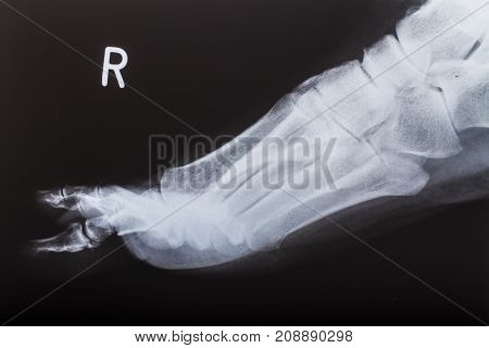 X-ray image of human foot on black background