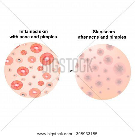 Types Of Blackheads, Pustule, Acne. Scarred Skin After Acne And Acne. Infographics. Illustration On