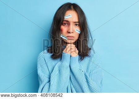People Trafficking Domestic Violence And Abusement Concept. Serious Bruised Young Female Looks Sadly