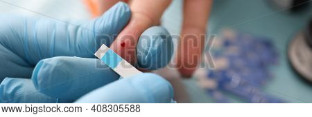Doctor Holding Test Strip Near Patients Finger With Drop Of Blood In Clinic Closeup. Glucometry In D