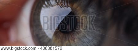Human Eye With Cornea And Pupil. Restoration Of Vision In Medical Clinics