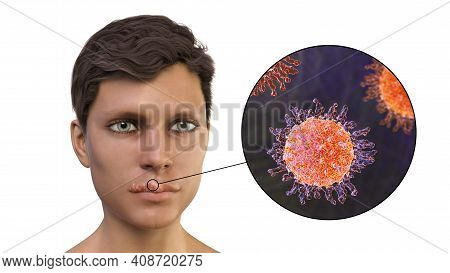 Herpes Labialis, Also Known As Cold Sores, 3d Illustration Showing Lesions On The Mans Lips Caused B