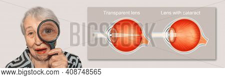 Cataract Concept. Senior Woman's Eye, Closeup And Cataracts And Healthy Eye Detailed Structure. Coll