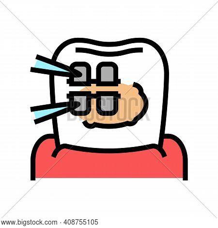 Installation Tooth Braces Color Icon Vector. Installation Tooth Braces Sign. Isolated Symbol Illustr