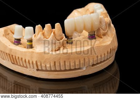Close-up Photo Of A Dental Lower Jaw Prosthesis On Black Glass Background. Artificial Jaw With Venee