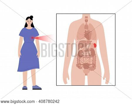 Pain Or Inflammation In Spleen. Cirrhosis Or Leukemia. Appointment With Doctor In Clinic. Ache In Fe