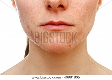 Adolescent Girl Suffering In Acne
