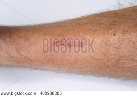 Mans Leg With Scar After Stitched Wound. Scar That Was Raised After Being Sewn