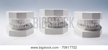 Front view of a plaster study models
