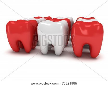 Aching And Healthy Teeth