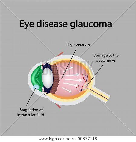 Glaucomatous eye. Violations causing glaucoma