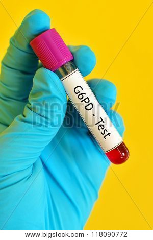 G6PD test