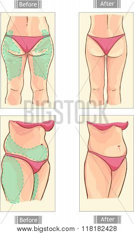 Yellow Background Vector Illustration Of A Liposuction