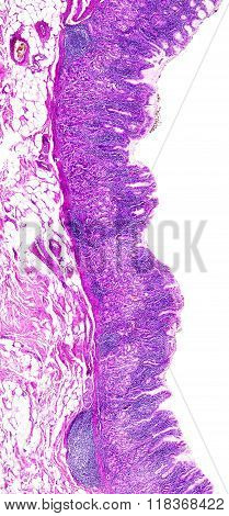 Chronic gastritis of a human