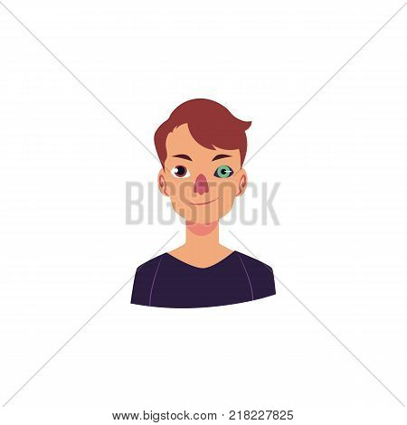 Half-length portrait of Caucasian man with bionic, artificial eye implant, cartoon vector illustration isolated on white background. Young man having bionic, artificial eye, futuristic technology