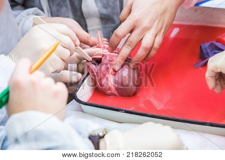 students of surgeons make seams on the open heart. Hands in medical gloves. details of a close-up operation.
