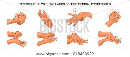 vector illustration of washing hands before medical procedures