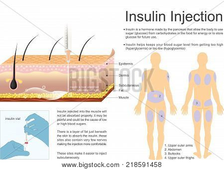Insulin Injection. Insulin helps keeps your blood sugar level from getting too high hyperglycaemia or too low hypoglycaemia.