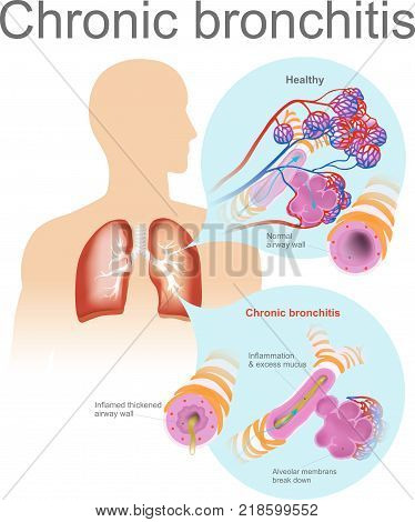 Acute bronchitis is usually caused by viruses typically the same viruses that cause colds and flu.